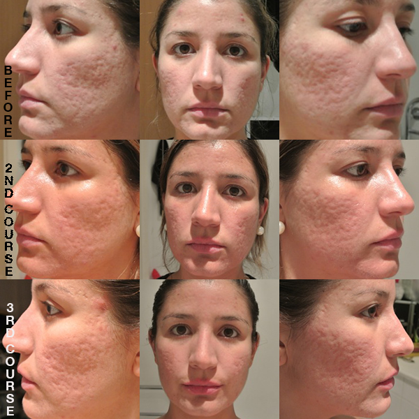 ZENMED Skin eraser before and after - somanylovelythings